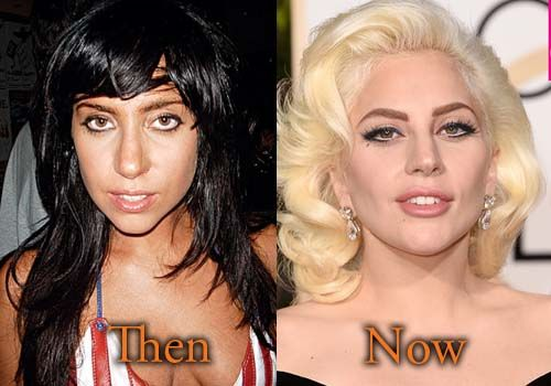 Lady Gaga Plastic Surgery Before and After Pictures. #ladygaga #cosmeticsurgery #plasticsurgery #celebritysurgery #botox