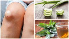 La acumulación de líquido en la rodilla aumenta los niveles de inflamación y dolor. Te damos 5 remedios caseros para combatirlo de forma natural.