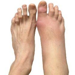 TREATMENTS OF ARTHRITIS IN FEETTammy Griffith