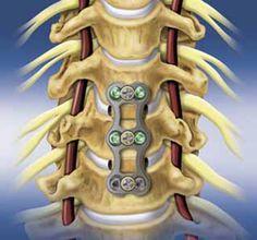 Artroplastia Cervical: cirurgia recupera movimentos da coluna