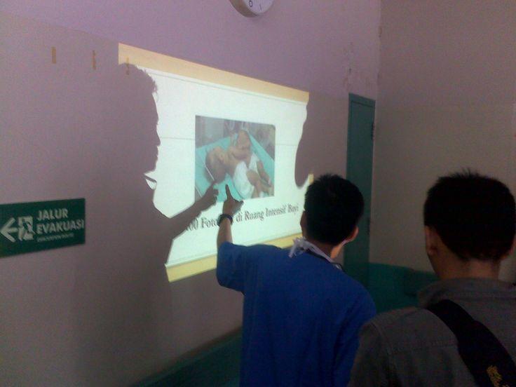 Tim Medis RSHS Bandung Berhasil Pisahkan Bayi Kembar Dempet Dada dan Perut