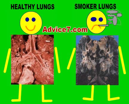 Black lung cancer from smoking