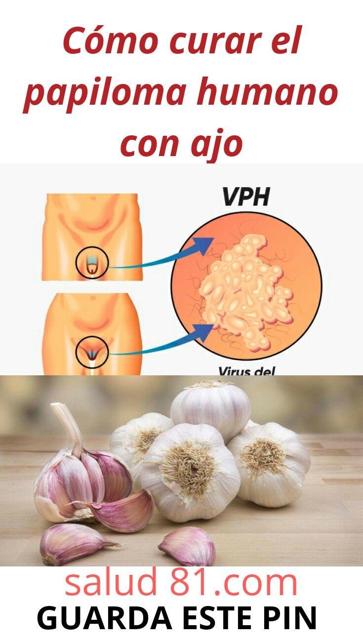 Virus del papiloma humano se puede curar