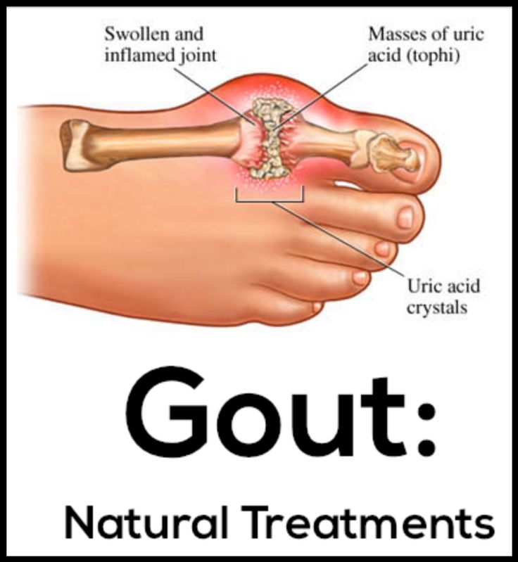 will drinking lots of water cure gout urine therapy for gout high uric acid and no gout