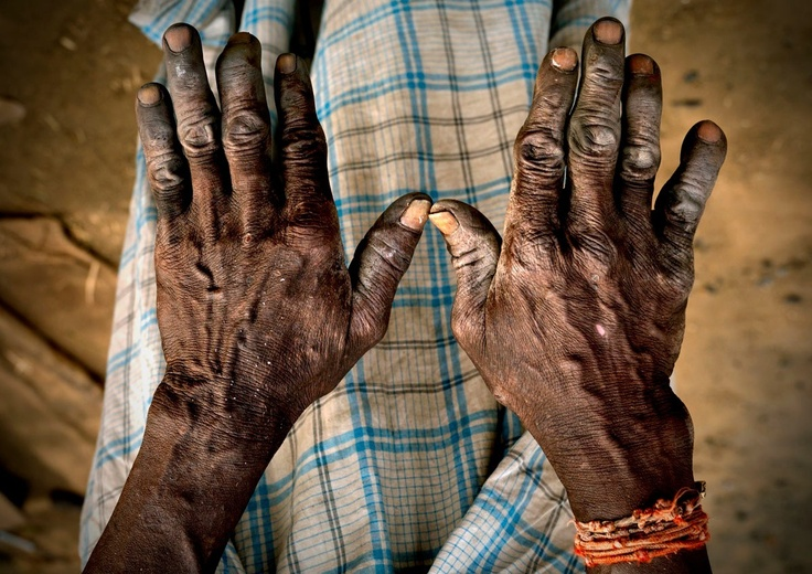 http://i.images.cdn.fotopedia.com/flickr-2301188555-hd/Countries_of_the_World/Asia/India/Hammersmith_hands_-_India.jpg