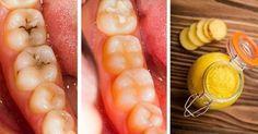 Sea su propio odontólogo! Cure las caries con esta pasta de dientes de gran alcance