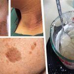 A nadie le gusta lucir una piel flácida, desgastada, arrugada y con manchas. Pero, son estos los resultados que nos puede dejar el paso del tiempo si no cuidamos debidamente nuestra piel.