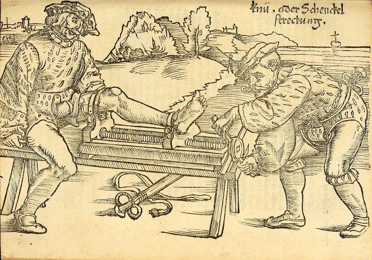 Artist: Hans Wechtlin, Title: Feldbuch der Wundartzney, Page: 99, Date: 1528
