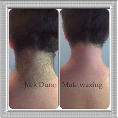 Aftercare for neck liposuction