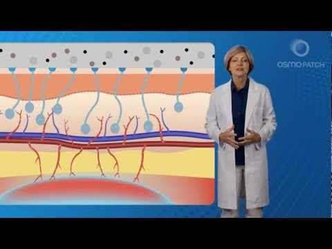 Shoulder Bursitis Treatment - (Drug Free & Non-Invasive) - YouTube