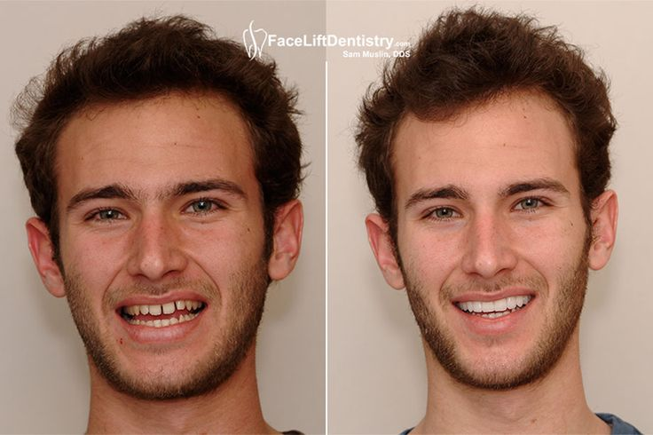 Visit the above link to see the effects of non-invasive Overbite Correction treatment. Get in touch with Dr. Sam Muslin to enhance your beauty. For more info click the link.  #NoninvasiveOverbiteCorrection