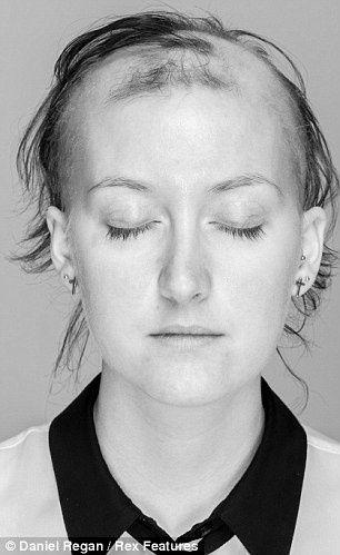 #hair #hairloss #alopecia #biotin #stop #hairshedding #vitaminsforhair #regrowthvitamins #hairproducts #arganrainoil #arganoil #arganrain #baldness #hairgrowth #hairregrowth #alopecia #alopeciatreatment #hairfall #hairshedding #baldness #baldnesstreatment #homeremediesforhairloss #arganrainproducts  #baldnessolution #healthy #beauty