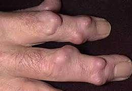 rheumatoid nodules photos - Bing Images