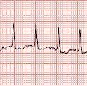 Atrial Fibrillation Rate Control in the ED: Calcium Channel Blockers or Beta Blockers?