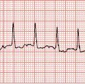 Atrial Fibrillation Rate Control in the ED: Calcium Channel Blockers or Beta Blockers?