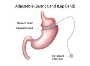 Post weight loss skin surgery may sound strange