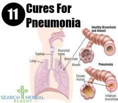 Pneumonia usually results from infections caused by bacteria or viruses. It is a lung infection. Common symptoms of pneumonia include severe fever, cold, chest pain ...