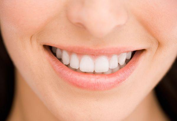 #Porcelain #Veneers #dentist #hygienist