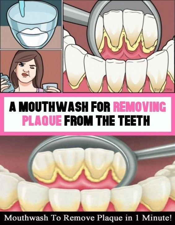 A Mouthwash To Take Off The Teeth Plaque In 2020 Mouthwash Plaque Teeth Plaque Removal