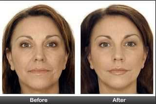 How To Get Wrinkles Out Of Your Face - Home Remedies