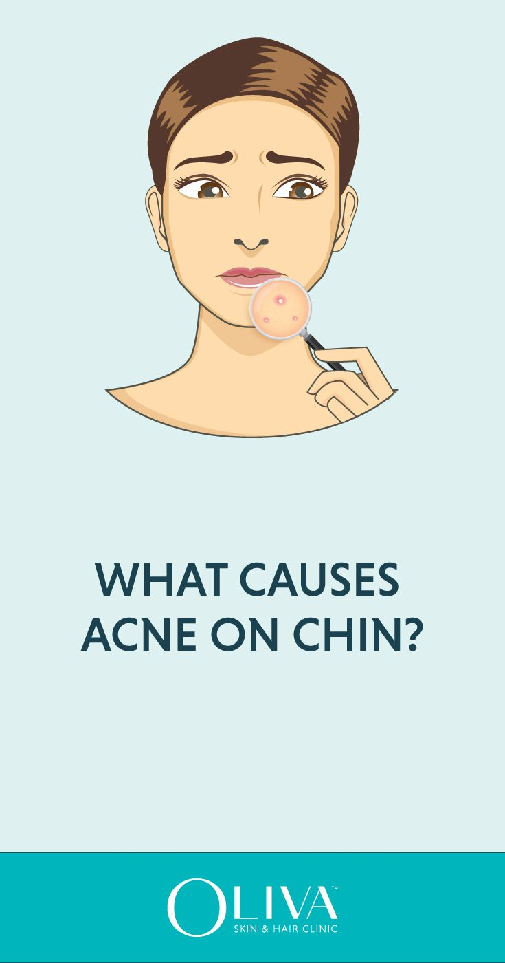 The Lower Portion Of The Face Including Chin And Jawline May Get Affected By Large Deep And Cystic Pimples Known As Ch Cystic Pimple Painful Acne Chin Acne