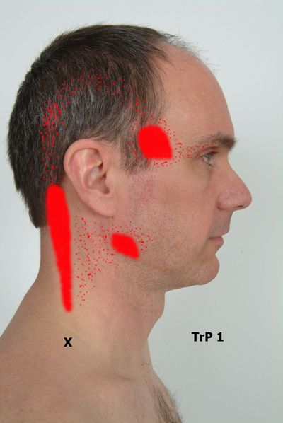trigger point therapy at home. I should post this in miracles! I have never seen anything more helpful.