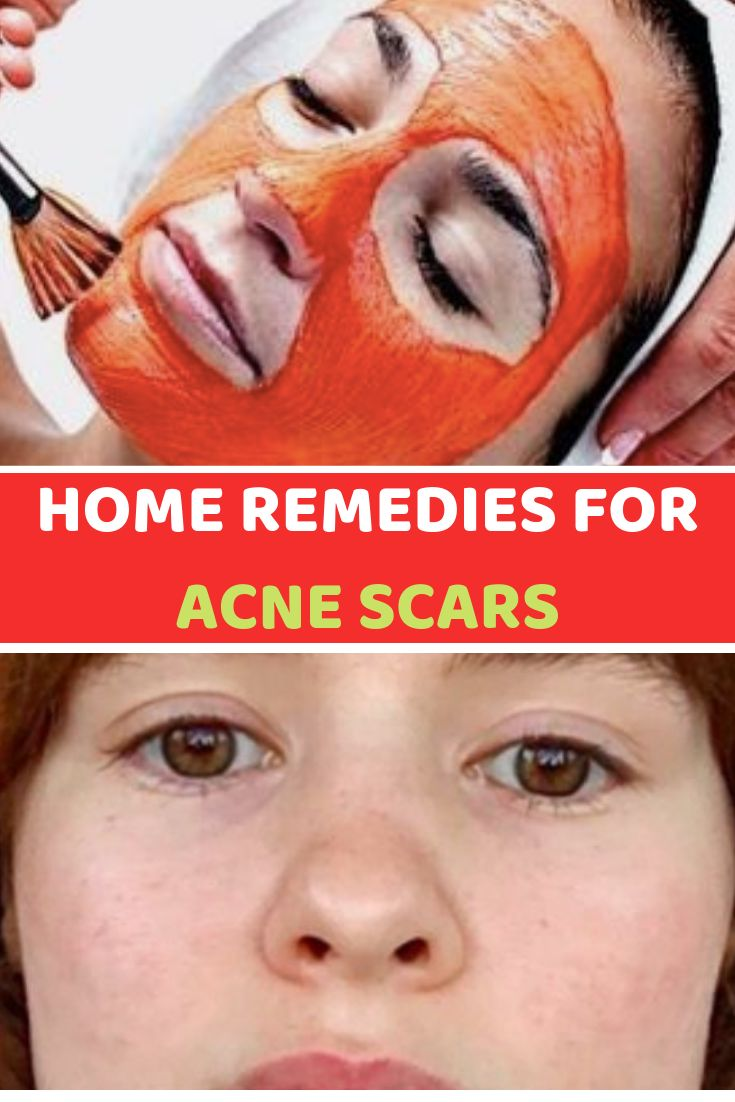 14 Home Remedies For Acne Scars That Actually Work