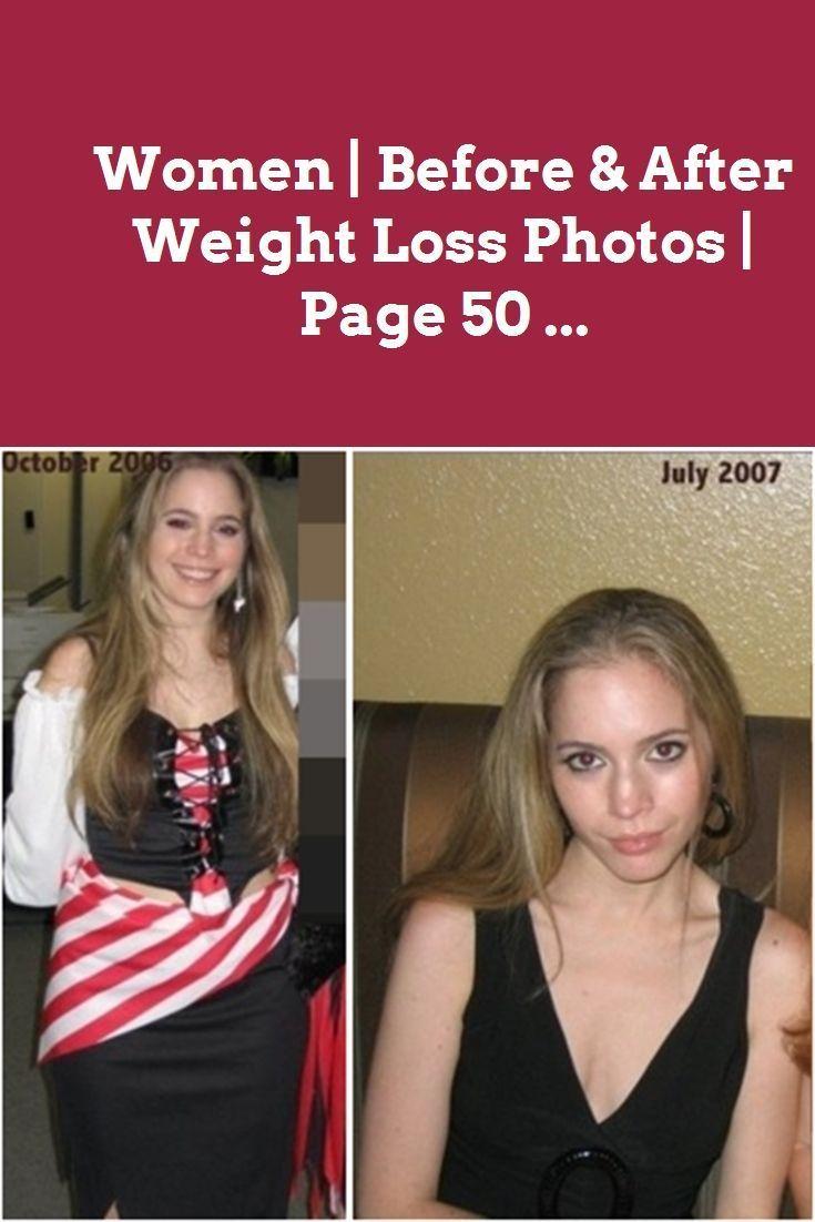 Frauen vor und nach dem Abnehmen