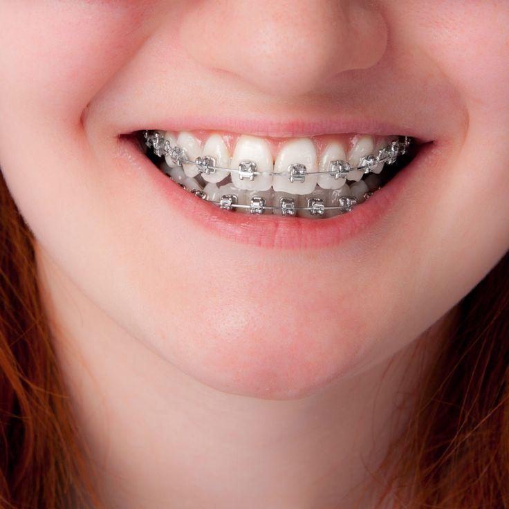 Park Art My WordPress Blog_How To Close A Gap In Your Teeth Without Braces