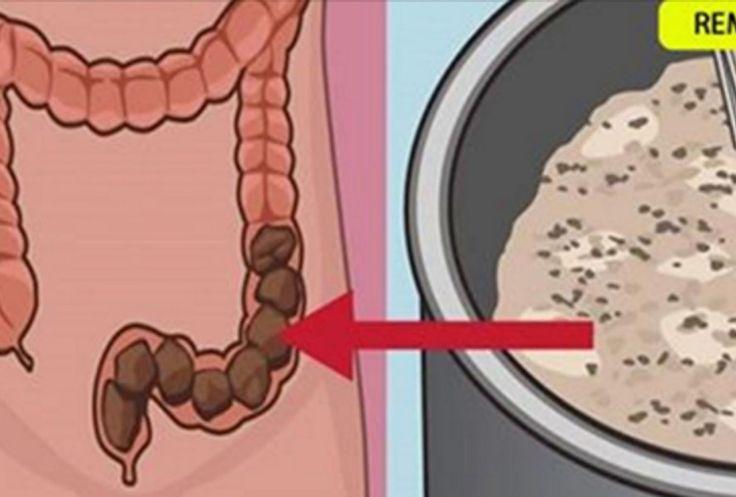 """Este remedio elimina la """"CaCa Atorada"""" … tu estomago te lo agradecerá y desinflama tu barriga !!"""