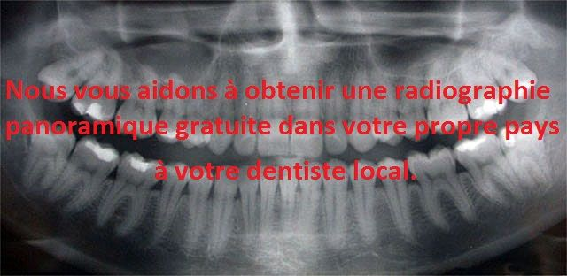 Nous sommes heureux de vous informer qu'une nouvelle offre spéciale pour la saison d'été vient d'être lancée. Afin de vous aider à obtenir plus facilement un plan de traitement et un devis à distance, qui vous permettra de planifier à l'avance votre séjour dentaire et notamment les frais de soins, nous vous remboursons maintenant le coût d'une radiographie panoramique qui faite chez votre dentiste local (à hauteur de 85 €) au cas où votre traitement se poursuivra chez Top Dentiste Budapest.