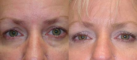 Dissolve Eye Bags And Dark Rings Doing These Facial Revitalization Workout Regimens
