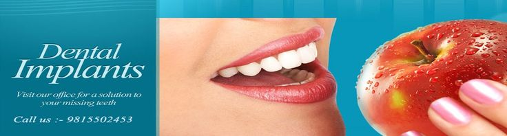 Best Dental Braces Clinic in Chandigarh contact with us for more information:9815502453