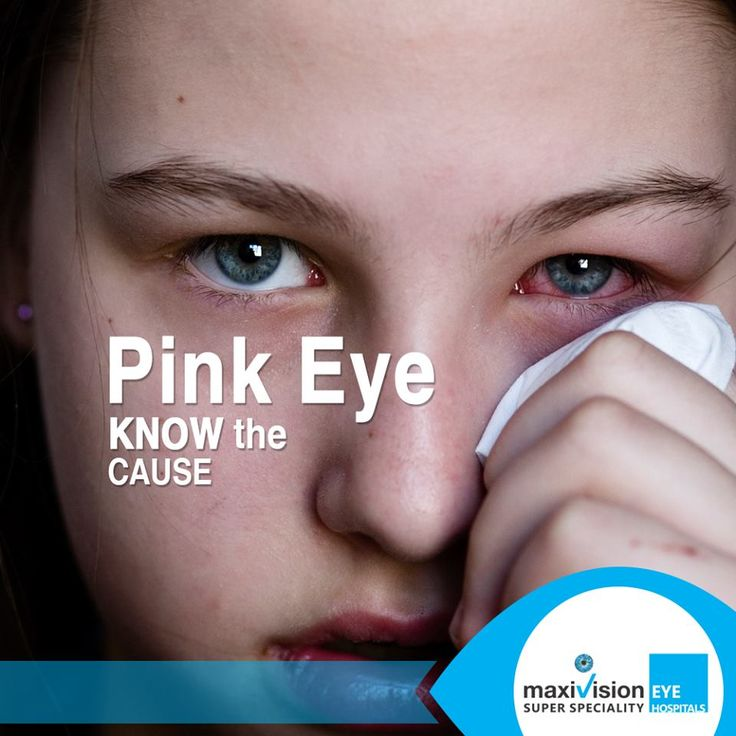 Allergic Conjunctivitis Vs Bacterial Pictures To Pin On: 25+ Best Ideas About Causes Of Pink Eye On Pinterest