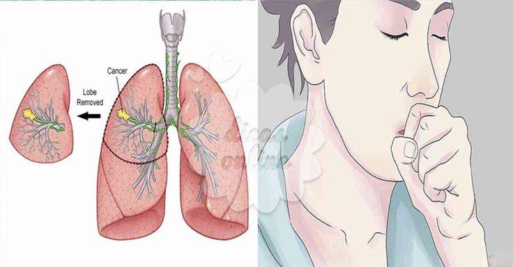 O câncer do pulmão é uma doença bem ameaçadora! Por norma, é já numa fase avançada que os sintomas aparecem. Na verdade, 40% dos pacientes com diagnóstico de câncer, apenas sabem da doença quando ela