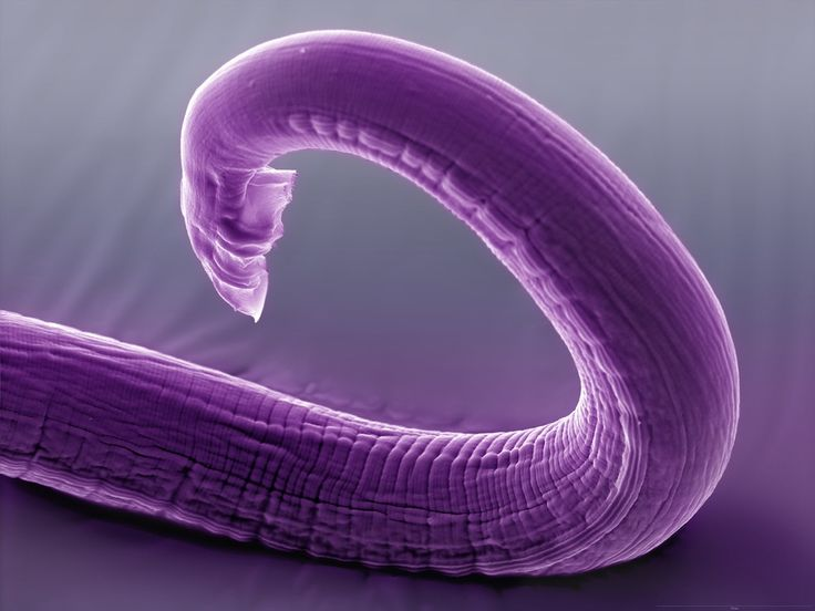 Image result for millimeterm worms