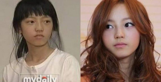 Why You Want Plastic Surgery