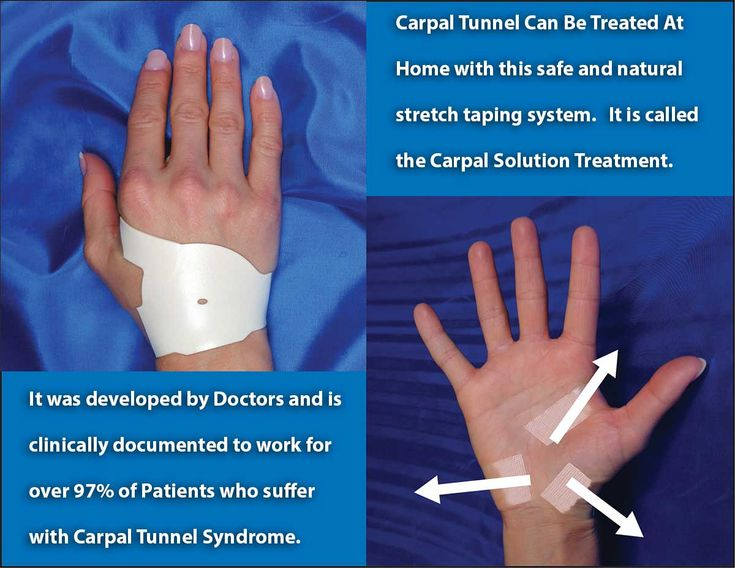 How to heal Carpal Tunnel Syndrome without Carpal Tunnel Surgery, without Pain Medication, without Rigid Wrist Splints, Without Steroid Injections.  The Carpal Solution treatment provides 224 hours of gentle stretching during sleep and puts Carpal Tunnel in remission within 6 weeks of treatment.  Soft tissue injuries require 6 weeks to heal.
