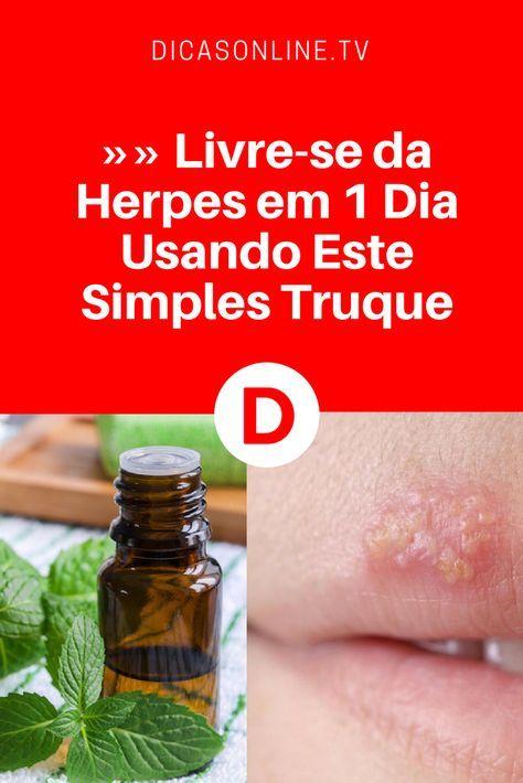 Remédios para herpes   Acabe com a herpes em 1 dia!