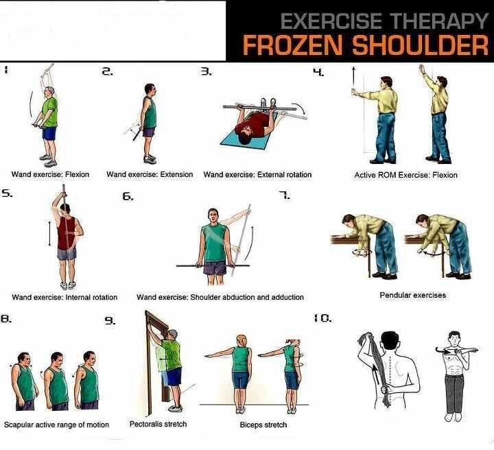 25+ best ideas about Frozen shoulder on Pinterest | Frozen ...