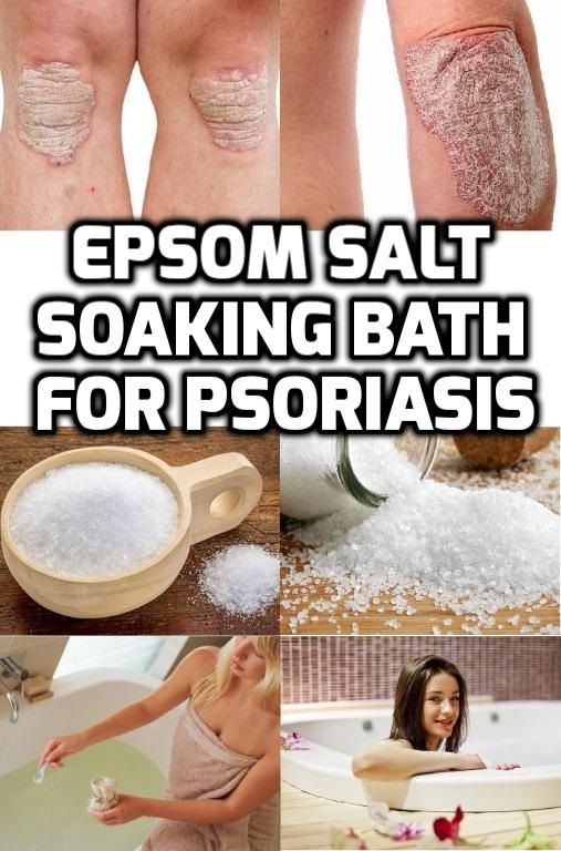 Soaking in a bath rub with dissolved Epsom salt and other additives such as essential oils and baking soda would help reduce inflammation, itching and irritation related to psoriasis. #EpsomsaltPsoriasis #Saltbathpsoriasis #Soakingbathpsoriasis
