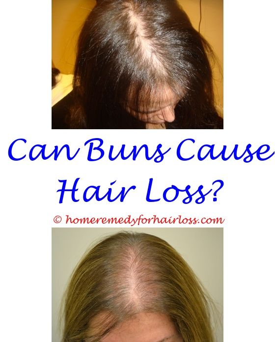 crusty scalp causing hair loss - infections that causes hair loss.does amla oil stop hair loss cat hair loss in patches on body anagrelide hair loss 2987972323