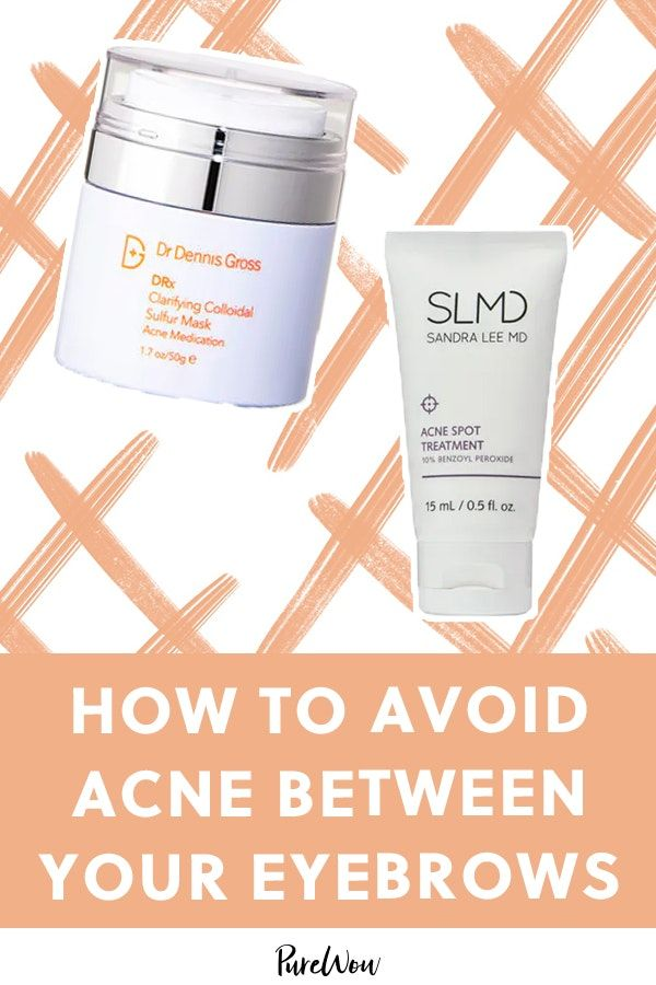 What Does It Mean When You Have Acne Between Your Eyebrows Acne Treatment Acne Between Eyebrows Skin Care
