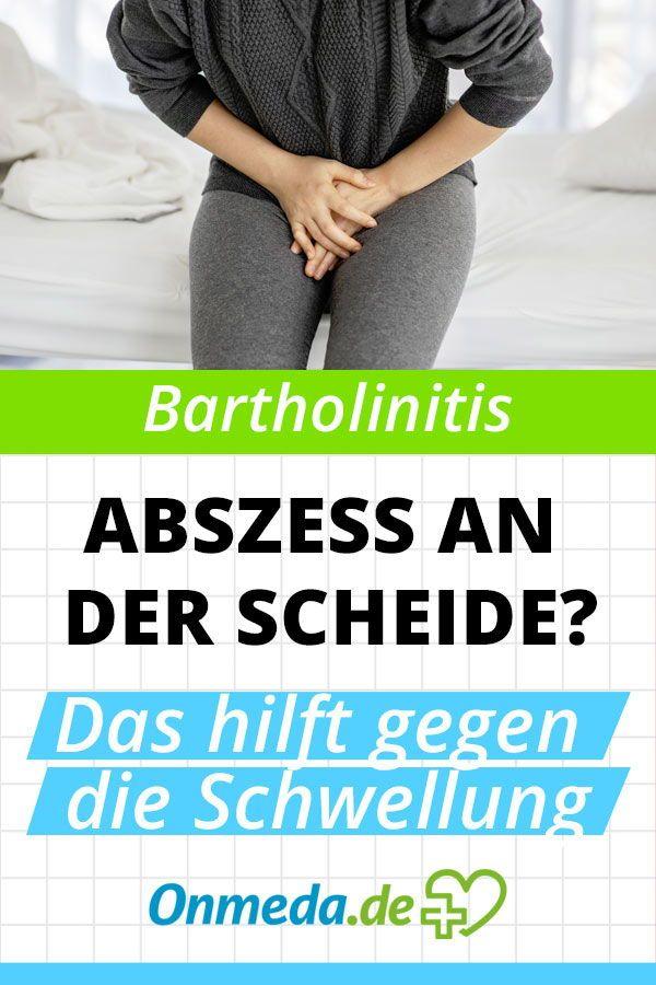 Fotos bartholinitis Bartholin's Gland