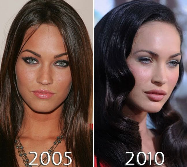 Megan Fox lips before and after photo