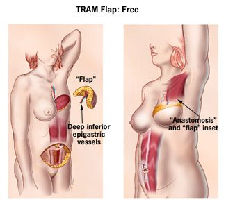 Pains After Breast Reconstruction with Silicone Implant