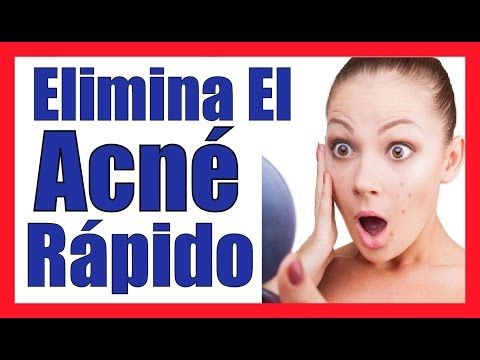 COMO CURAR EL ACNE DE LA CARA DE FORMA NATURAL RAPIDO Quitar El Acne Severo Remedios Caseros - YouTube