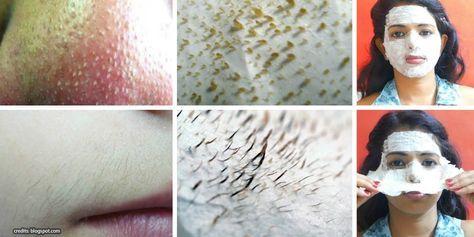 So kannst Du mit einfachen Mitteln, Mitesser und Härchen von deinem Gesicht entfernen. In diesem Video lernst Du wie einfach es ist, Gesichtsbehaarung und Hautunreinheiten mit natürlichen Zutaten zu b (Natural Beauty Face)