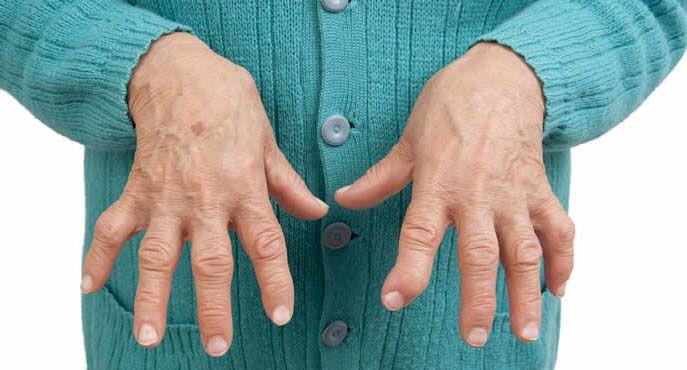 Dicas simples para evitar as crises dolorosas e inflamações da artrite reumatóide.