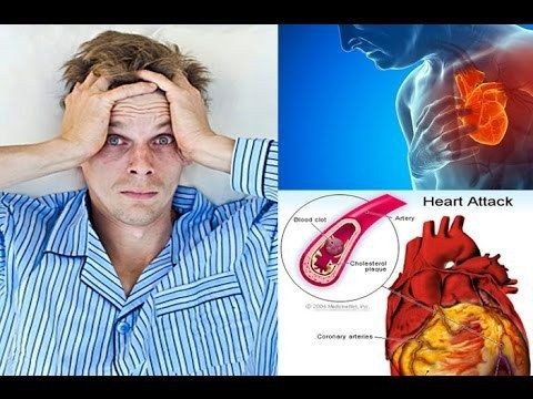 Bad Sleep Can Cause Heart Attack If Not Properly Given Right Medication! - WATCH VIDEO HERE -> http://bestdiabetes.solutions/bad-sleep-can-cause-heart-attack-if-not-properly-given-right-medication/      Why diabetes has NOTHING to do with blood sugar  *** sleep problems with diabetes ***  The best rest is sleep it is proven and tested because when we sleep our body recharge and we can do our daily task with full of energy. Did you know that stress is considered by most sleep